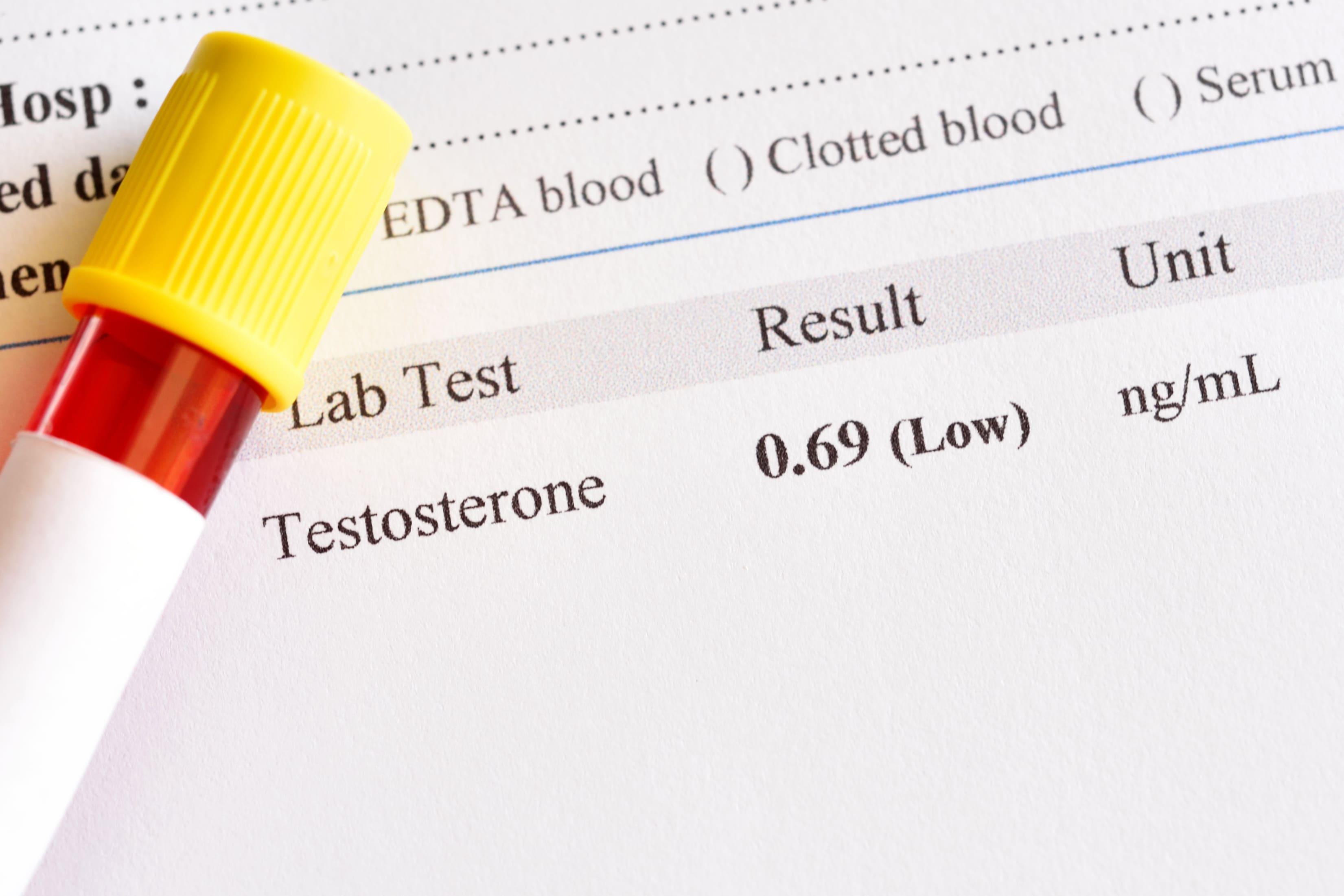 testosteronnivå
